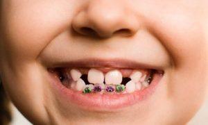 brackets interceptivos para niños